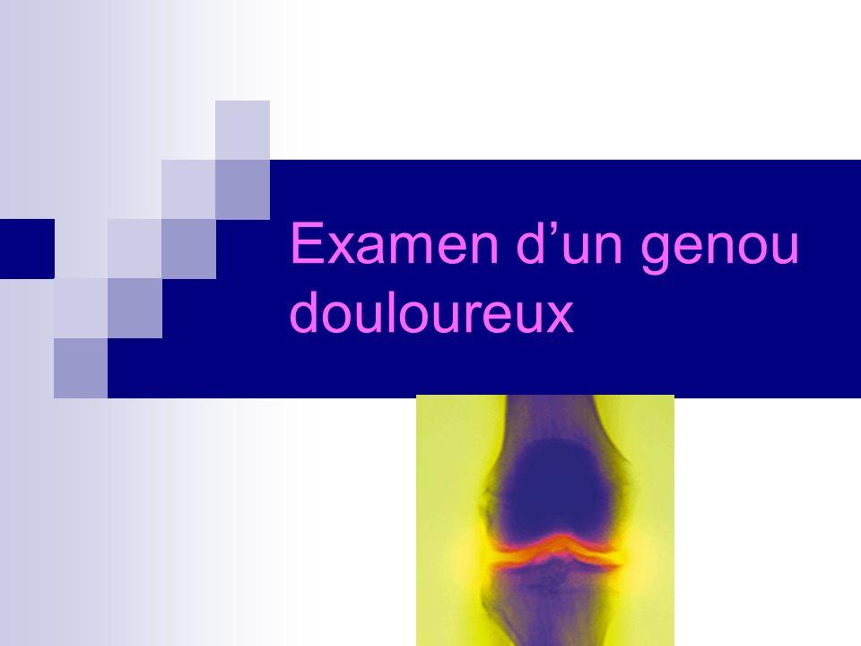 recherche dun trouble statique des articulations: exemple Genu varumGenu valgum Genu flessum Genu recurvatum
