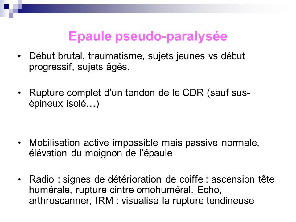 Epaule aiguë hyperalgique Réaction inflammatoire autour dune calcification Patient >40ans, femme. Début brutal. Douleur intense. Signes généraux, fièv