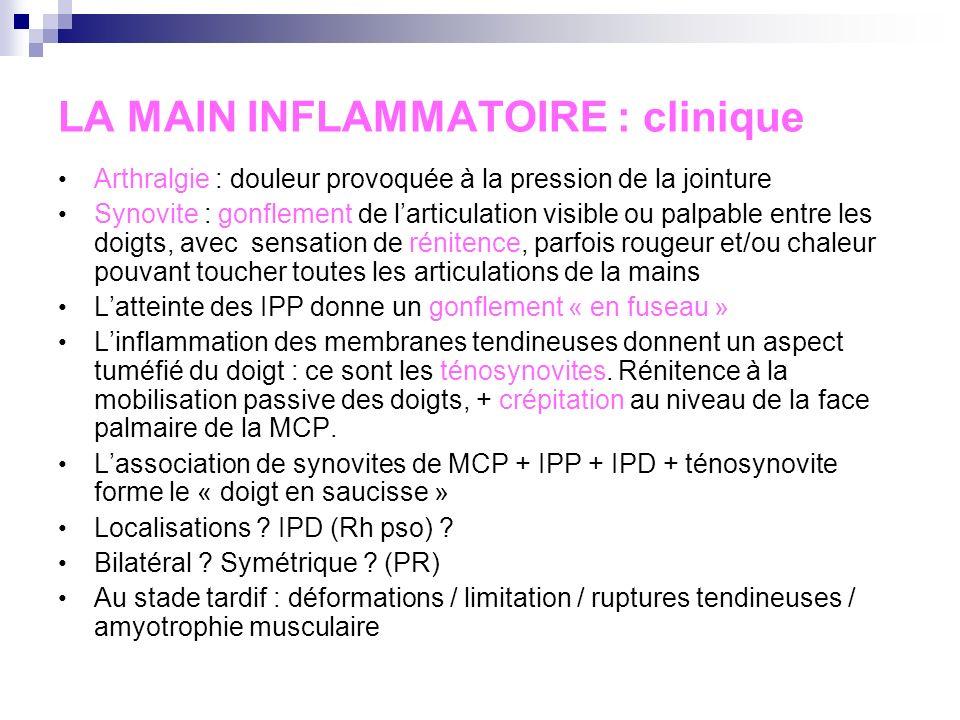 LA MAIN INFLAMMATOIRE : interrogatoire Horaire inflammatoire Terrain : âge, sexe, ATCD (hyperuricémie, auto- immuns…) Durée dévolution Mono ou polyart