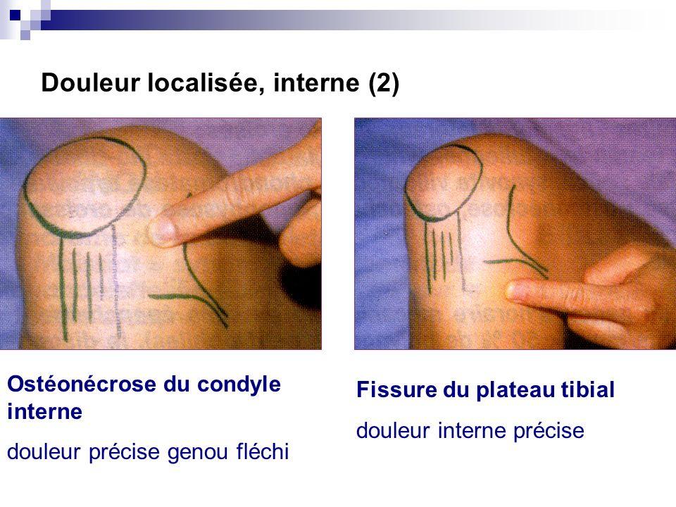 Douleur localisée, interne (1) Lésion méniscale interne : douleur précise, à la partie moyenne de linterligne Entorse du LLI : douleur précise de lins