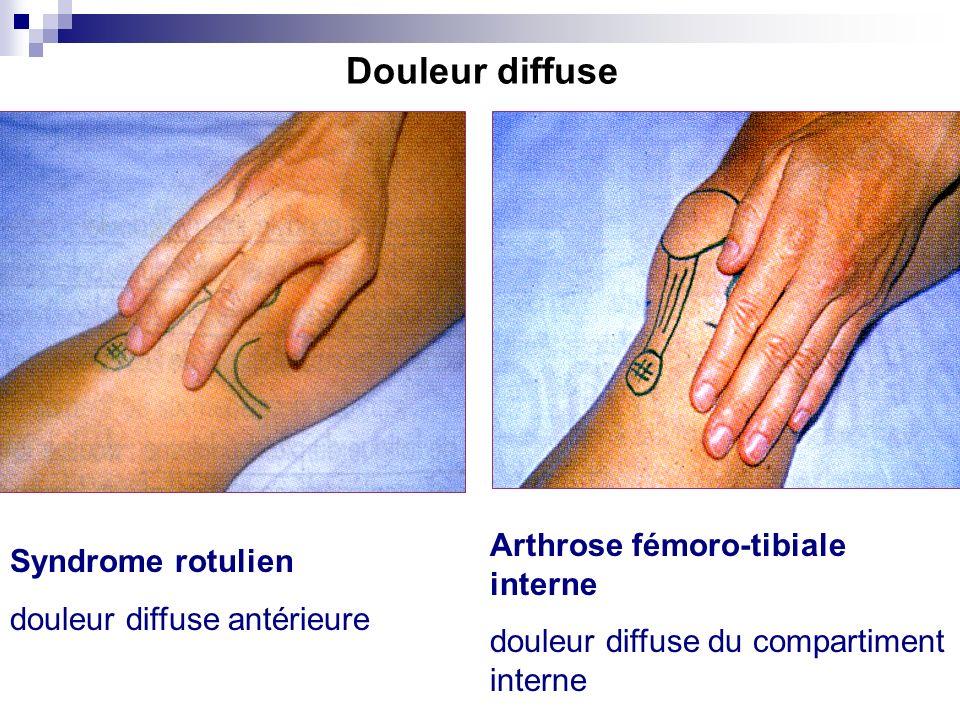 Si la douleur est diffuse … (Douleur « en paume ») antérieure interne postérieure 1. Où avez-vous mal ? (suite)