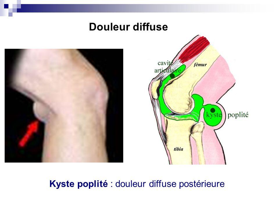 Syndrome rotulien douleur diffuse antérieure Arthrose fémoro-tibiale interne douleur diffuse du compartiment interne Douleur diffuse