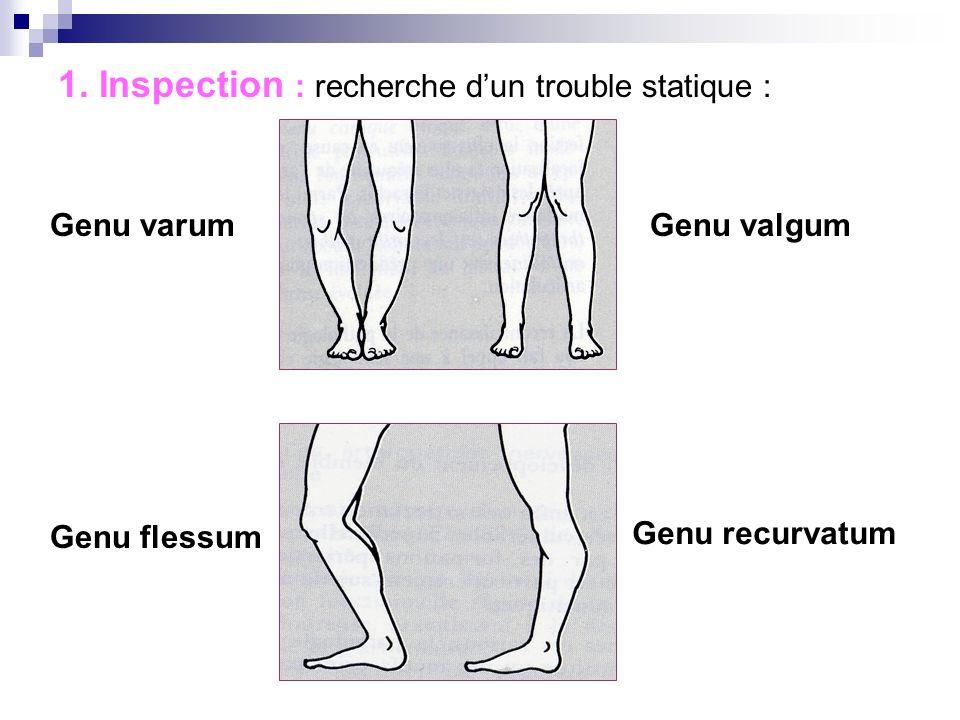 EXAMEN PHYSIQUE 1. Inspection : recherche dun trouble statique 2. Epanchement articulaire ? 3. Mobilisation 4. Recherche de points douloureux 5. Syndr