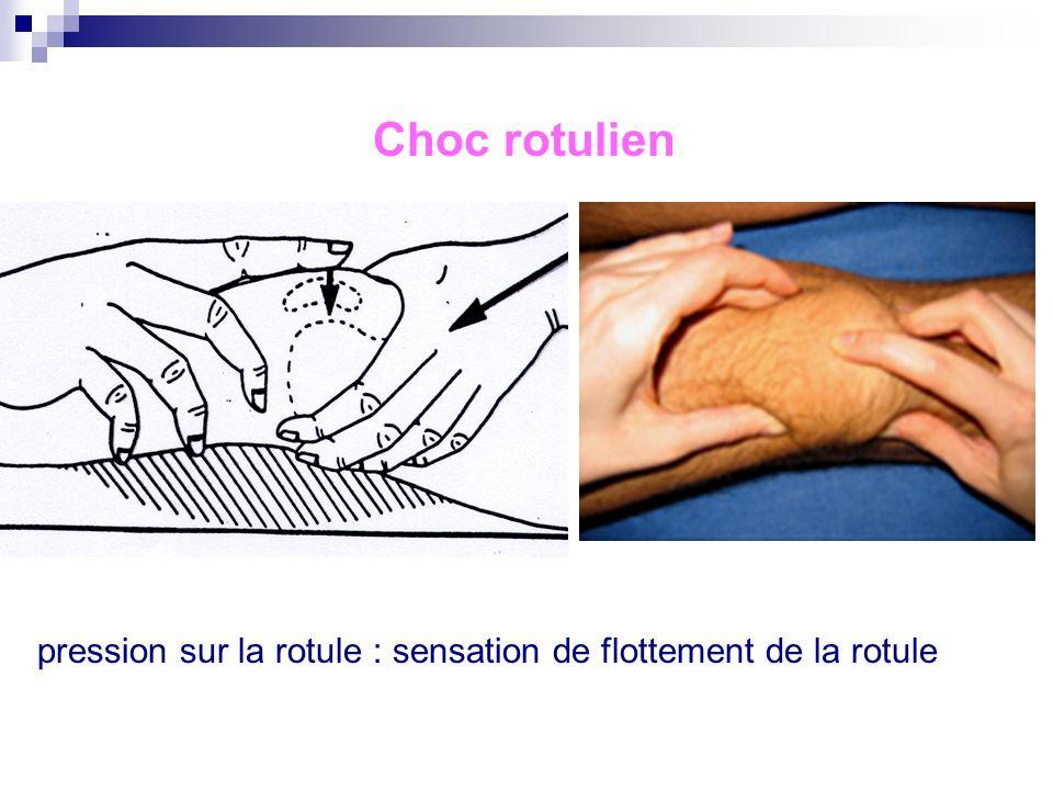 Choc rotulien : On exerce une pression sur la rotule : sensation de flottement de la rotule si épanchement articulaire (rénitence) Difficultés : épanc