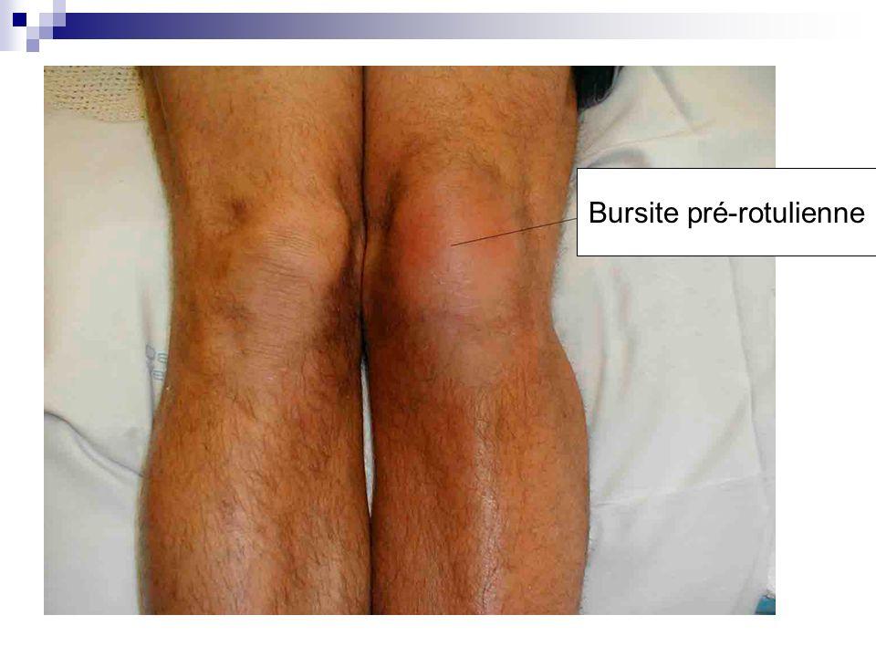 Ne pas confondre épanchement du genou et bursite !
