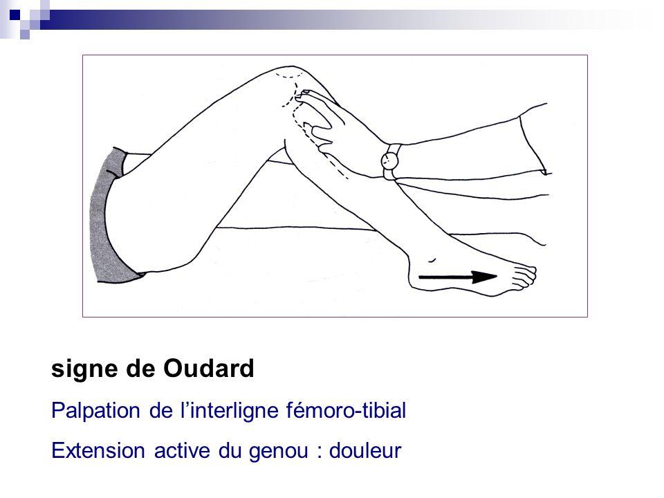 6. Recherche dun syndrome méniscal (suite) : Examen physique : aucun signe nest pathognomonique Recherche de points douloureux méniscaux électifs, sig