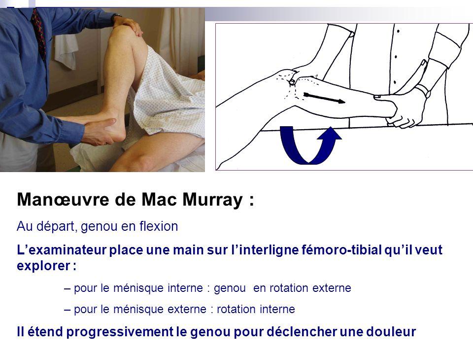 signe de Oudard Palpation de linterligne fémoro-tibial Extension active du genou : douleur