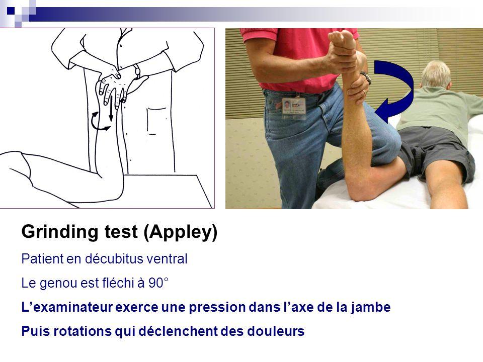 Manœuvre de Mac Murray : Au départ, genou en flexion Lexaminateur place une main sur linterligne fémoro-tibial quil veut explorer : – pour le ménisque