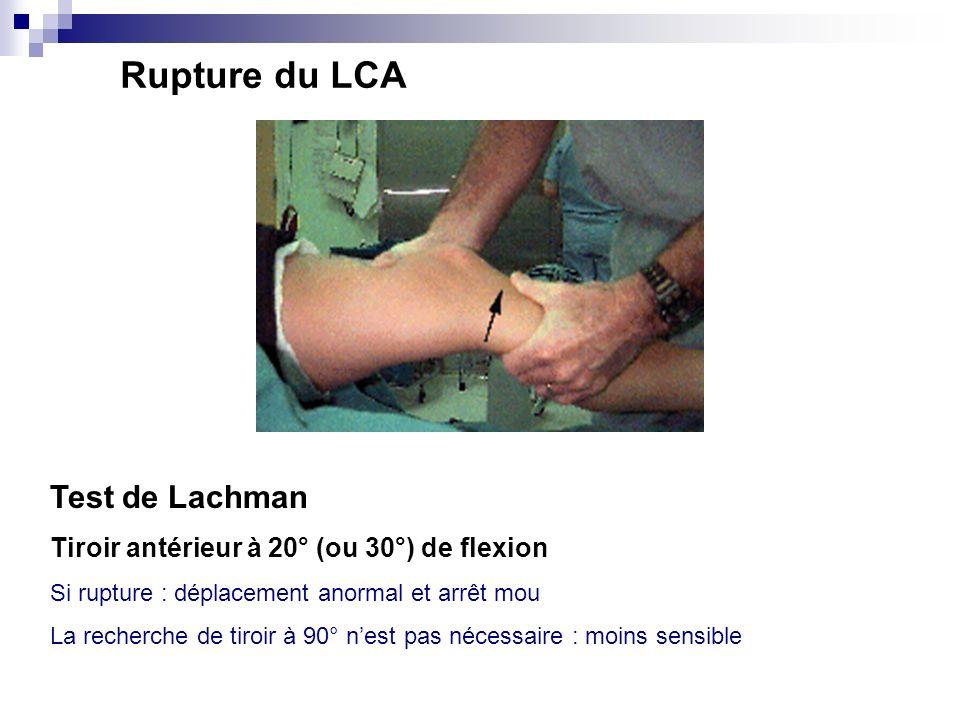 7. Recherche dune pathologie ligamentaire Rupture du ligament croisé antérieur (LCA) Rupture du ligament croisé postérieur (LCP)