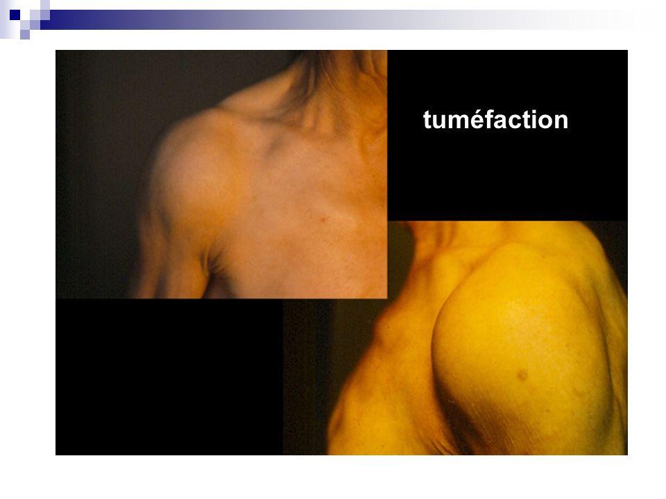 1. Inspection Examiner les contours de lépaule à la recherche dune amyotrophie ou dune tuméfaction (épanchement ?) Comparer les autres reliefs muscula