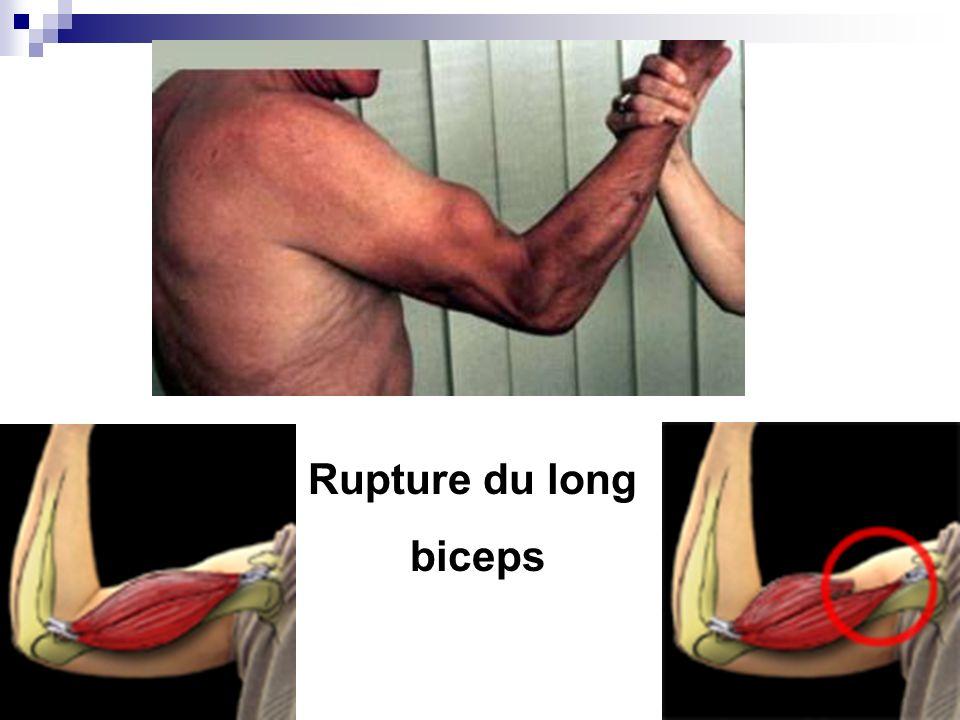 Arthrite septique de lépaule