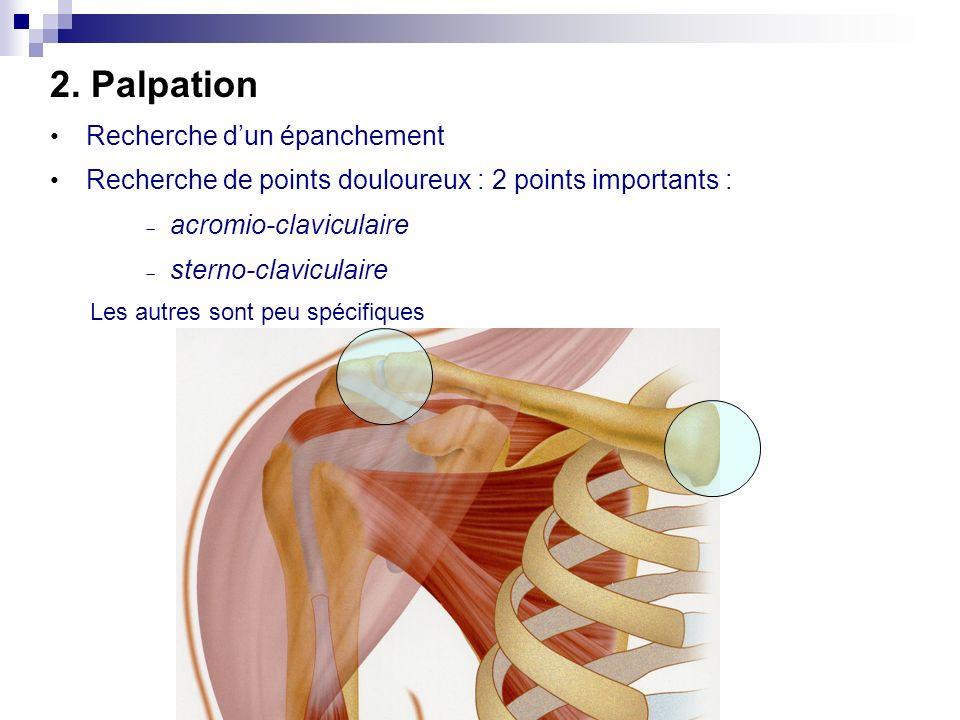 Décollement du bord spinal de lomoplate : Neuropathie du nerf du grand dentelé Atteinte du NERF THORACIQUE LONG (Nerf de Charles Bell)