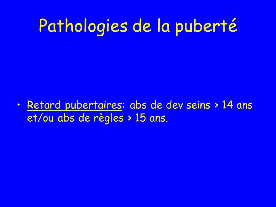 Pathologies de la puberté Retard pubertaires: abs de dev seins > 14 ans et/ou abs de règles > 15 ans.