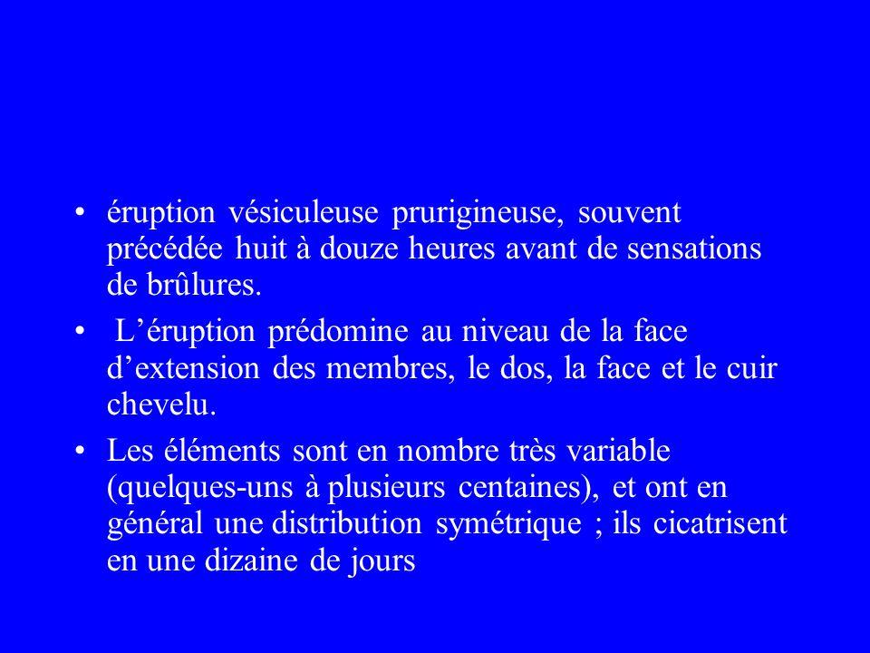 éruption vésiculeuse prurigineuse, souvent précédée huit à douze heures avant de sensations de brûlures. Léruption prédomine au niveau de la face dext