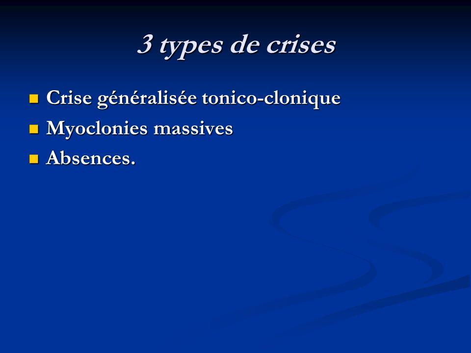 Décharge paroxystique d'emblée propagée aux deux hémisphères. Décharge paroxystique d'emblée propagée aux deux hémisphères. signes moteurs d'emblée bi