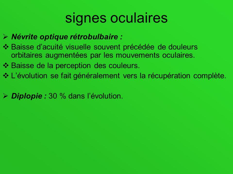 signes oculaires Névrite optique rétrobulbaire : Baisse dacuité visuelle souvent précédée de douleurs orbitaires augmentées par les mouvements oculair
