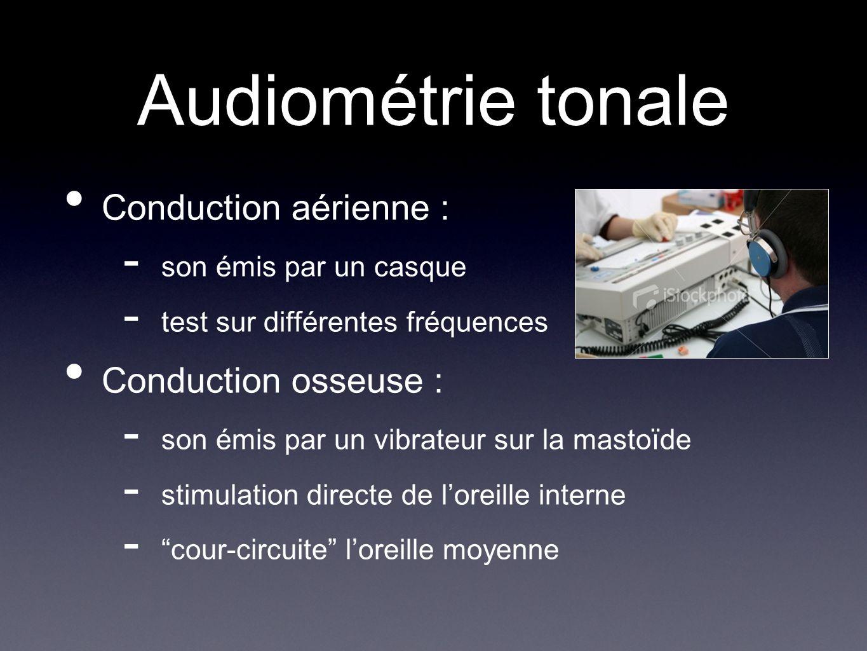 Audiométrie tonale Conduction aérienne : - son émis par un casque - test sur différentes fréquences Conduction osseuse : - son émis par un vibrateur s