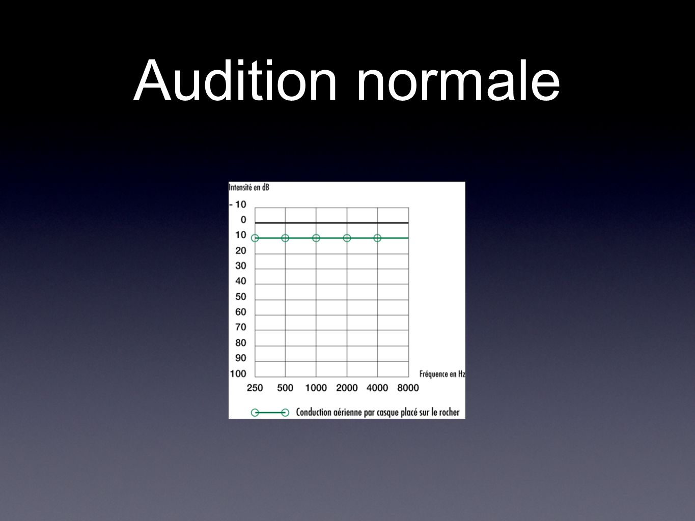 Audition normale