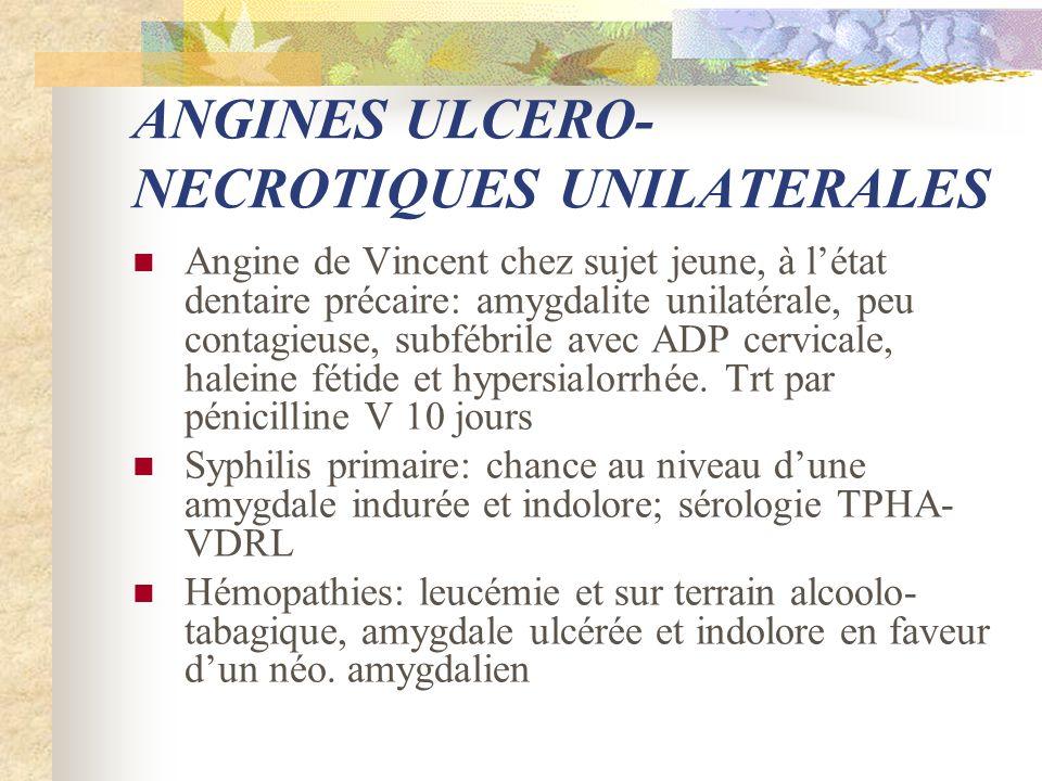 ANGINES ULCERO- NECROTIQUES UNILATERALES Angine de Vincent chez sujet jeune, à létat dentaire précaire: amygdalite unilatérale, peu contagieuse, subfé