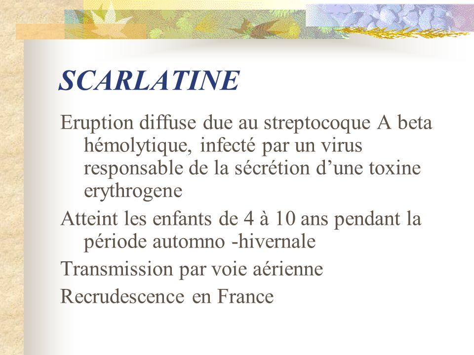 SCARLATINE Eruption diffuse due au streptocoque A beta hémolytique, infecté par un virus responsable de la sécrétion dune toxine erythrogene Atteint l