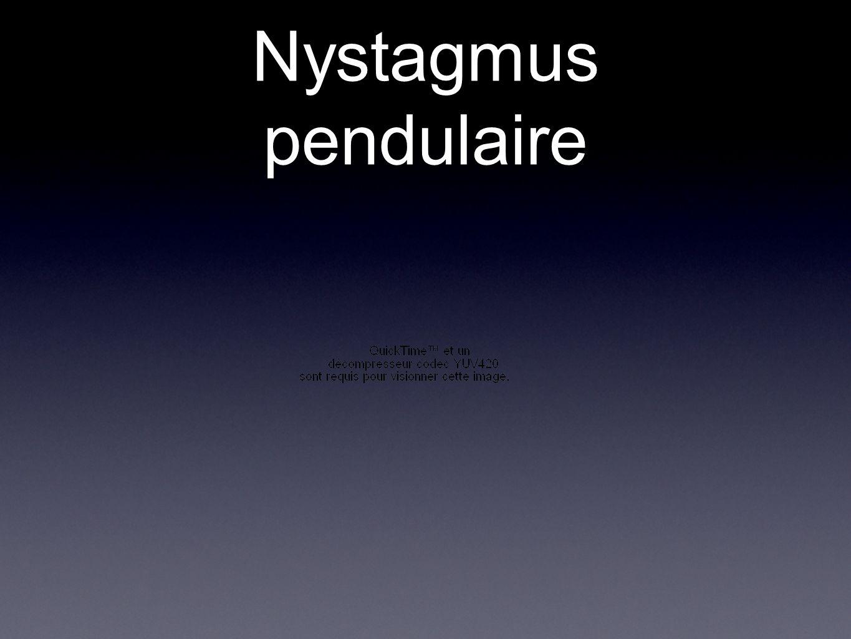 Nystagmus pendulaire