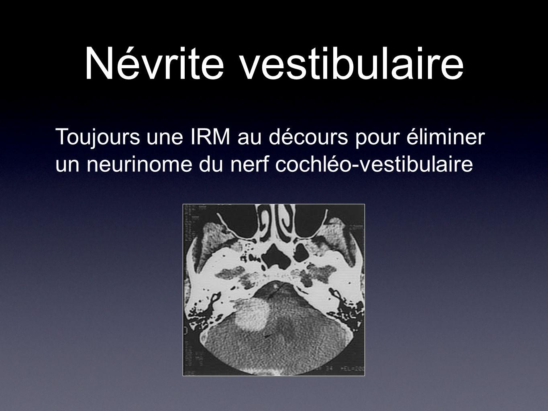 Névrite vestibulaire Toujours une IRM au décours pour éliminer un neurinome du nerf cochléo-vestibulaire