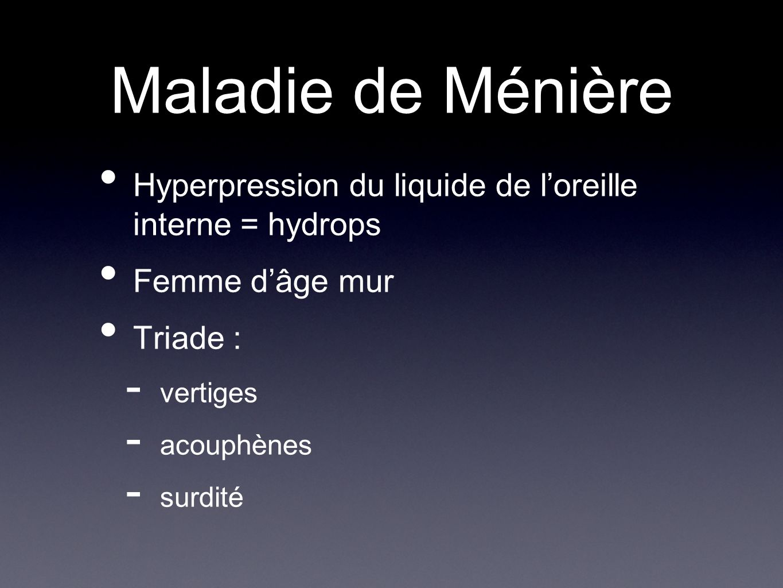 Maladie de Ménière Hyperpression du liquide de loreille interne = hydrops Femme dâge mur Triade : - vertiges - acouphènes - surdité