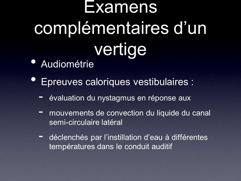 Examens complémentaires dun vertige Audiométrie Epreuves caloriques vestibulaires : - évaluation du nystagmus en réponse aux - mouvements de convectio
