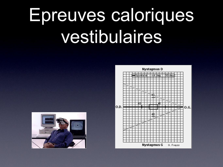 Epreuves caloriques vestibulaires