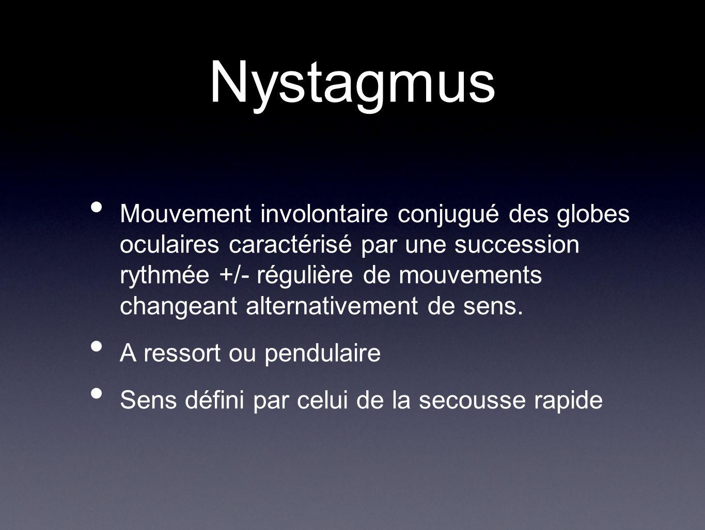 Nystagmus Mouvement involontaire conjugué des globes oculaires caractérisé par une succession rythmée +/- régulière de mouvements changeant alternativ