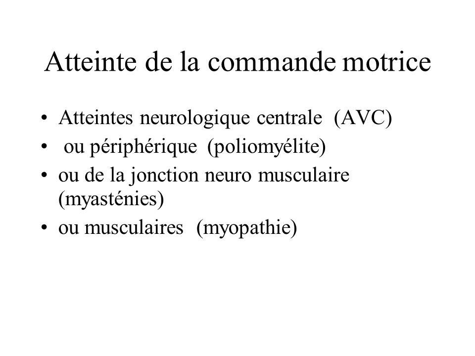 Atteinte de la commande motrice Atteintes neurologique centrale (AVC) ou périphérique (poliomyélite) ou de la jonction neuro musculaire (myasténies) o