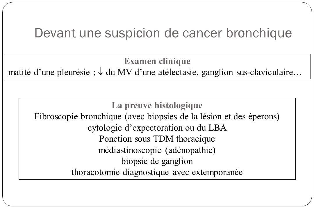 histologie Epidermoïde : 45%, rôle du tabac +++, souvent dextension loco- régionale, présence de tonofilaments et de kératine à lhistologie Adénocarcinome : 25%, souvent périphérique, métastase cérébrale fréquente, avec architecture acineuse et papillaire à lhistologie TTF-1+ Carcinome bronchiolo-alvéolaire (forme dadénocarcinome), dextension surtout locale avec dissémination par voie aérienne Carcinome à petite cellules 20% Indifférencié à grandes cellules, autres (carcinoïde, sarcome…)