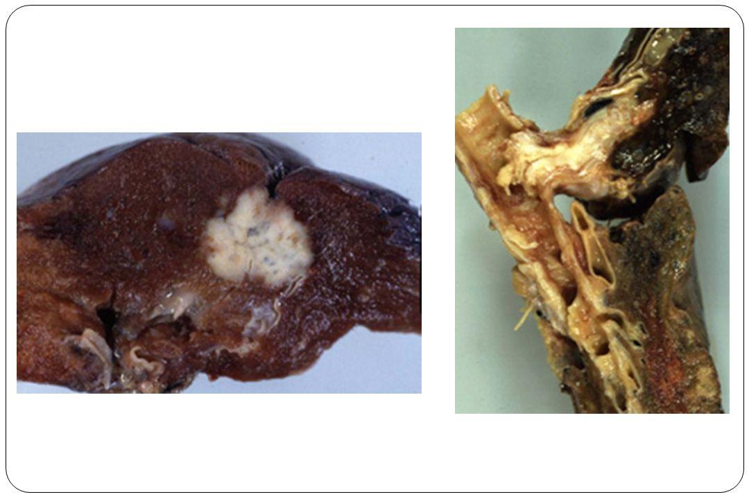 Bilan dextension et dopérabilité: objectif curatif=chirurgie bilan dextension Radio de thorax TDM thoracique et des surrénales écho abdominale TDM cérébrale (si adénocarcinome) Tep scan si point dappel (ponction pleurale, scintigraphie osseuse…) Bilan dopérabilité indice de Karnofsky (état général), index de lOMS insuffisance cardio-vasculaire… EFR.