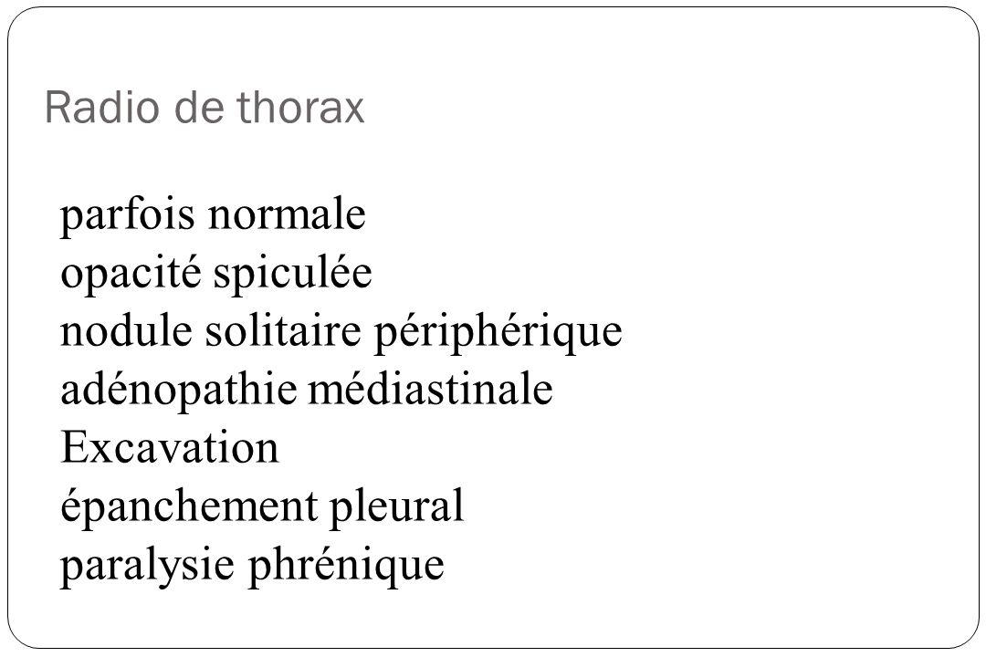 Radio de thorax parfois normale opacité spiculée nodule solitaire périphérique adénopathie médiastinale Excavation épanchement pleural paralysie phrén
