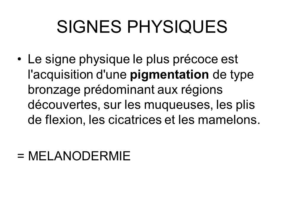 SIGNES PHYSIQUES Le signe physique le plus précoce est l acquisition d une pigmentation de type bronzage prédominant aux régions découvertes, sur les muqueuses, les plis de flexion, les cicatrices et les mamelons.