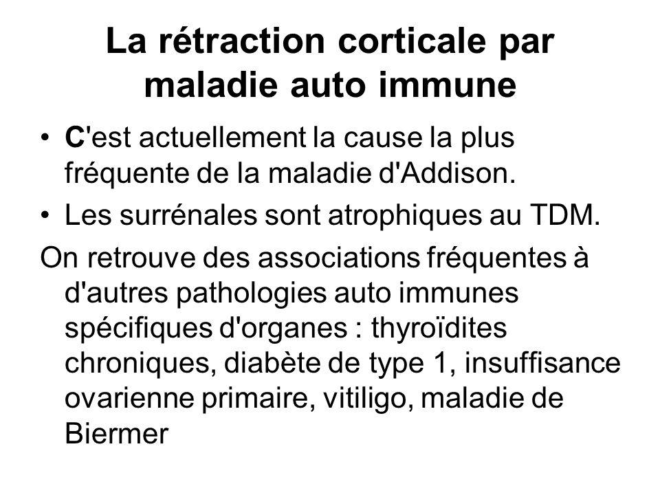 Autres étiologies Les tumeurs Les infections en dehors de la tuberculose : certaines mycoses, le virus HIV peuvent être en cause.