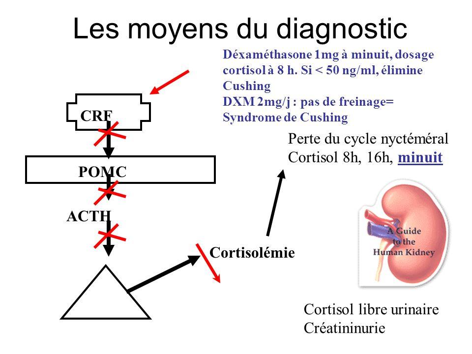 Les moyens de diagnostic Dosage de lACTH : Bas : ACTH indépendant Elevé : ACTH dépendant Freinage fort : 2mg de DXM toutes les 6h pendant 2 j => le CLU doit diminuer dau moins 50%.
