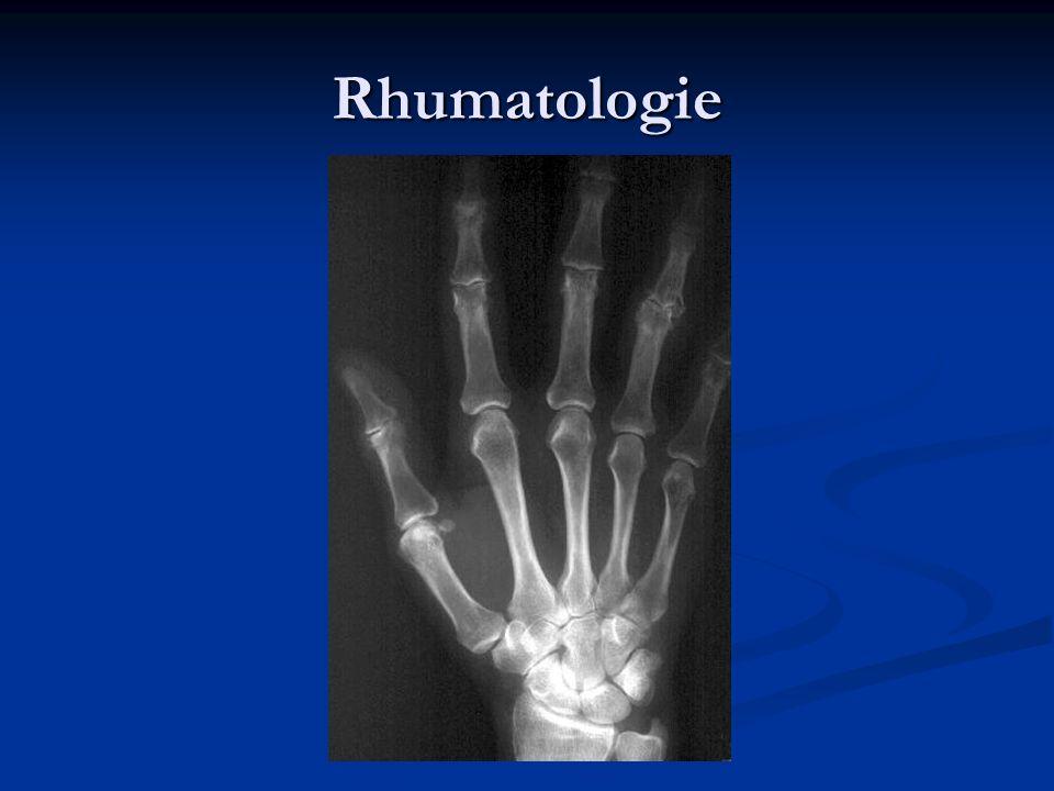 Rhumatologie Traitements Immunosuppresseurs Anti TNF alpha Anti TNF alpha Infliximab, Etanercept, Adalimumab Infliximab, Etanercept, Adalimumab Rituximab (anti CD20) Rituximab (anti CD20)