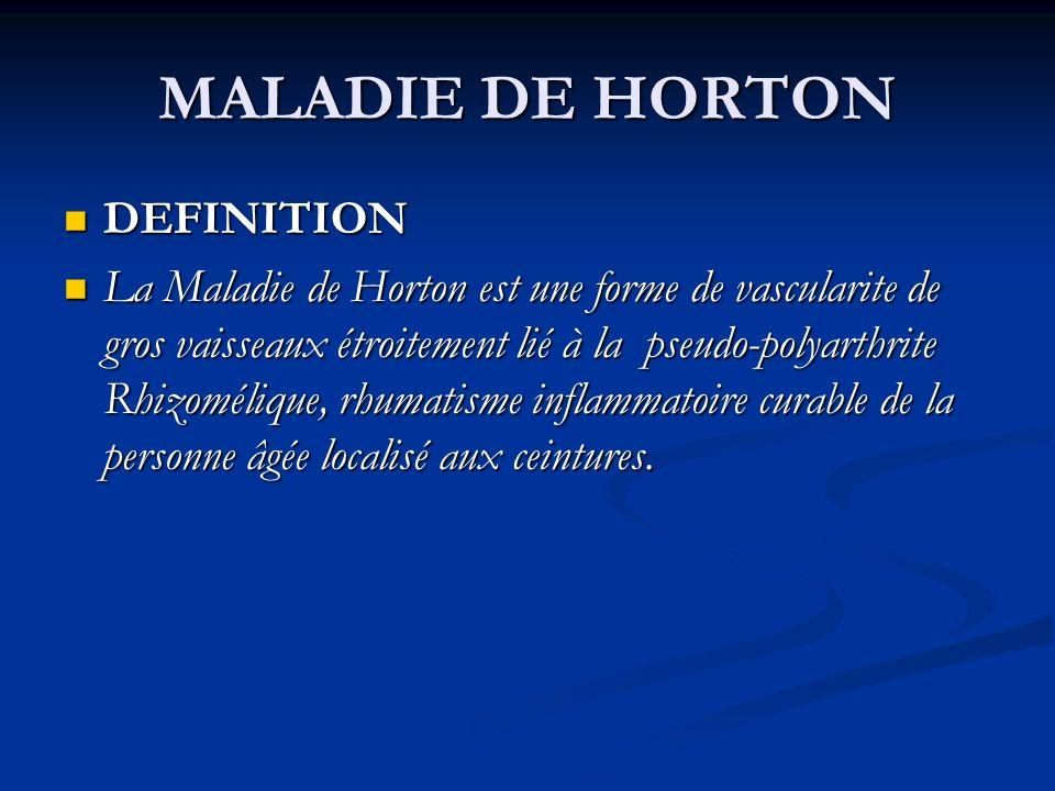 MALADIE DE HORTON DEFINITION DEFINITION La Maladie de Horton est une forme de vascularite de gros vaisseaux étroitement lié à la pseudo-polyarthrite Rhizomélique, rhumatisme inflammatoire curable de la personne âgée localisé aux ceintures.