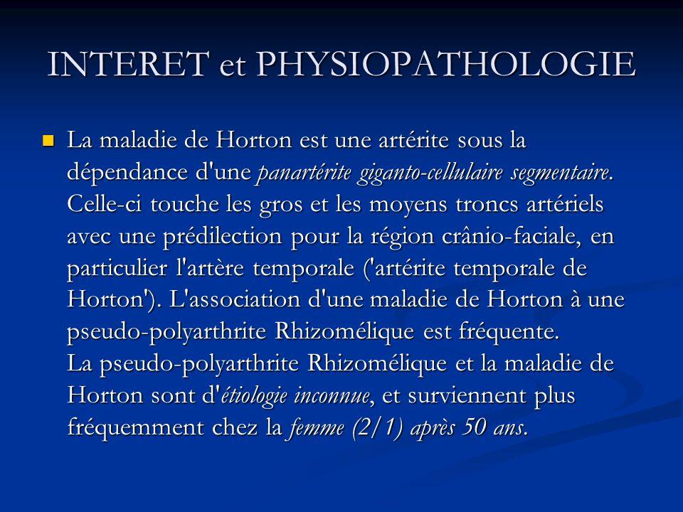 INTERET et PHYSIOPATHOLOGIE La maladie de Horton est une artérite sous la dépendance d'une panartérite giganto-cellulaire segmentaire. Celle-ci touche