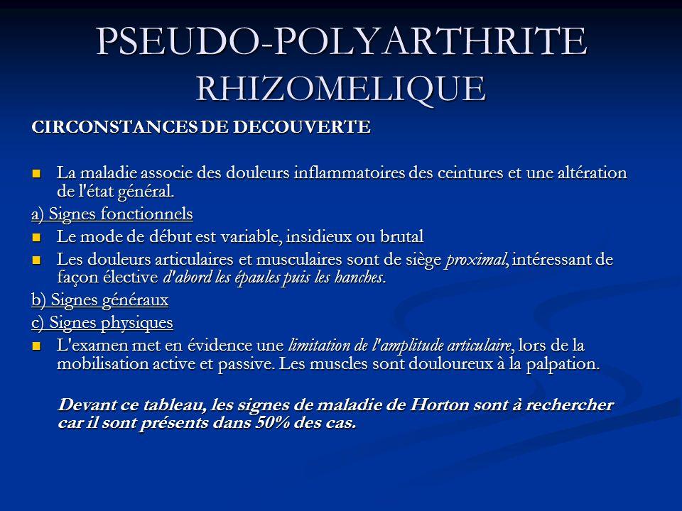PSEUDO-POLYARTHRITE RHIZOMELIQUE CIRCONSTANCES DE DECOUVERTE La maladie associe des douleurs inflammatoires des ceintures et une altération de l'état