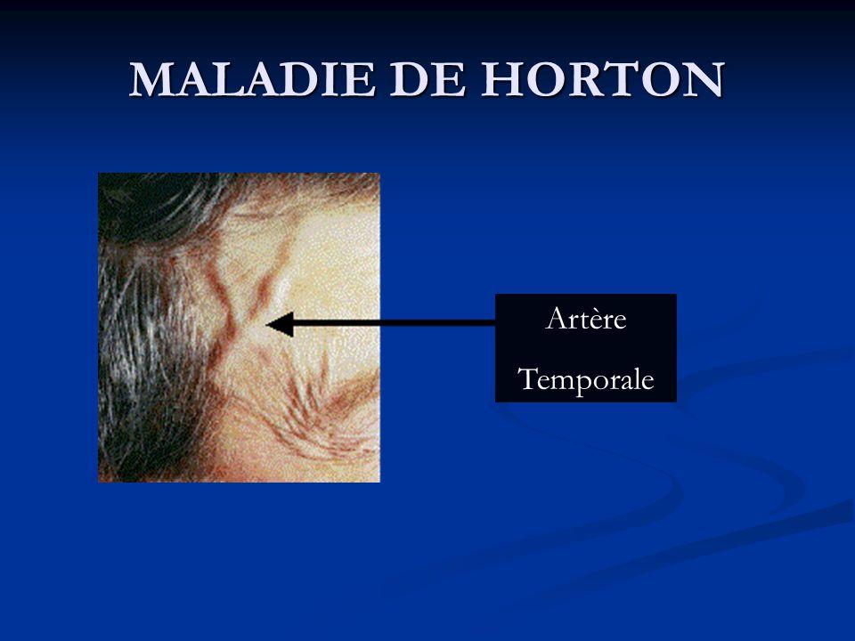 MALADIE DE HORTON Artère Temporale