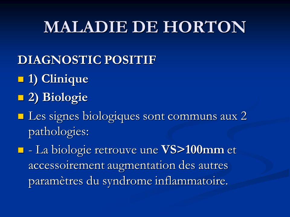 MALADIE DE HORTON DIAGNOSTIC POSITIF 1) Clinique 1) Clinique 2) Biologie 2) Biologie Les signes biologiques sont communs aux 2 pathologies: Les signes