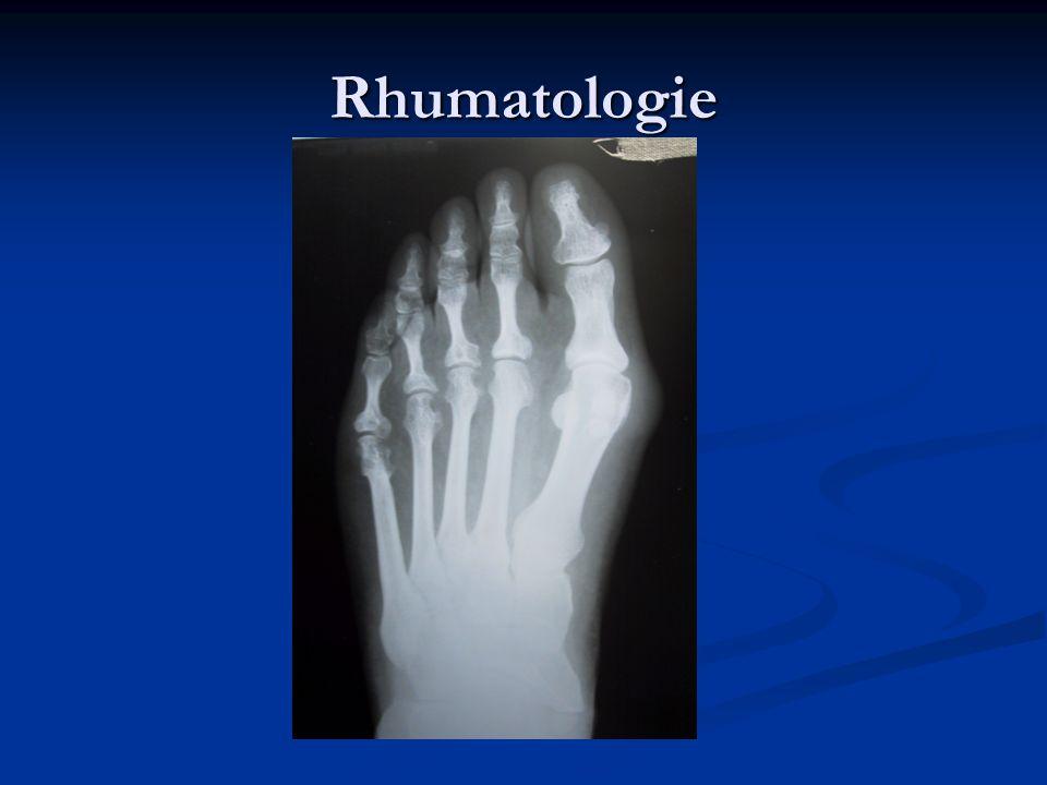Scintigraphie osseuse Scintigraphie osseuse Elle est le reflet de l activité de la maladie: la scintigraphie est toutefois le siège d une hyperfixation tellement intense qu elle est évocatrice de la maladie.