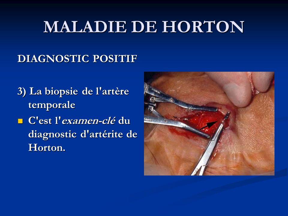 MALADIE DE HORTON DIAGNOSTIC POSITIF 3) La biopsie de l'artère temporale C'est l'examen-clé du diagnostic d'artérite de Horton. C'est l'examen-clé du