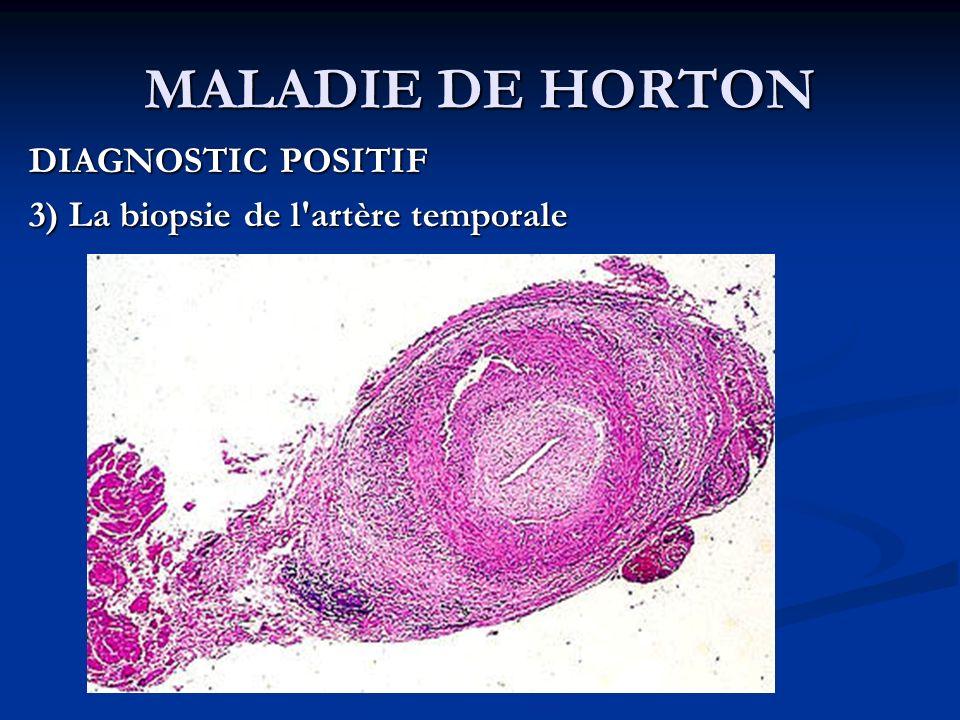MALADIE DE HORTON DIAGNOSTIC POSITIF 3) La biopsie de l'artère temporale