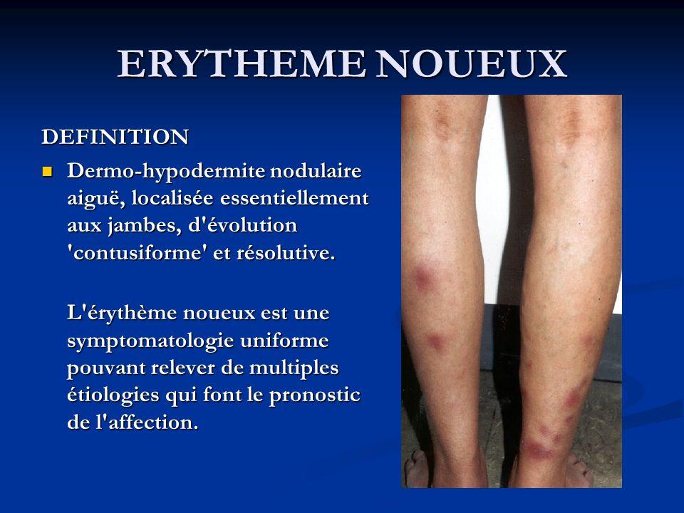 ERYTHEME NOUEUX DEFINITION Dermo-hypodermite nodulaire aiguë, localisée essentiellement aux jambes, d évolution contusiforme et résolutive.