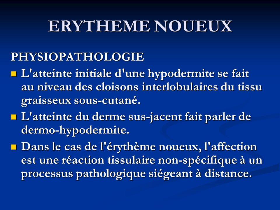 ERYTHEME NOUEUX PHYSIOPATHOLOGIE L'atteinte initiale d'une hypodermite se fait au niveau des cloisons interlobulaires du tissu graisseux sous-cutané.