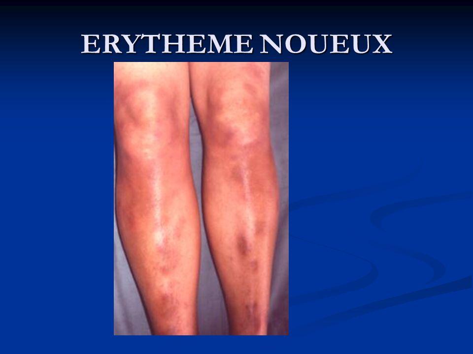 ERYTHEME NOUEUX