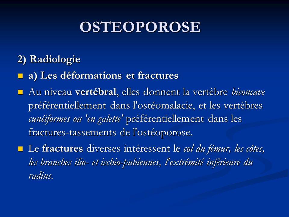 OSTEOPOROSE 2) Radiologie a) Les déformations et fractures a) Les déformations et fractures Au niveau vertébral, elles donnent la vertèbre biconcave préférentiellement dans l ostéomalacie, et les vertèbres cunéiformes ou en galette préférentiellement dans les fractures-tassements de l ostéoporose.
